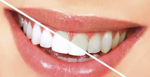 Estetica dentara Stomproced