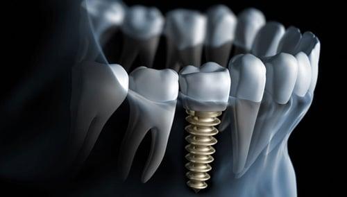 Ce este un implant dentar