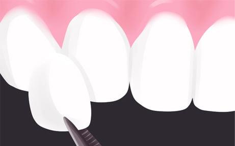 Fatete dentare din ceramica