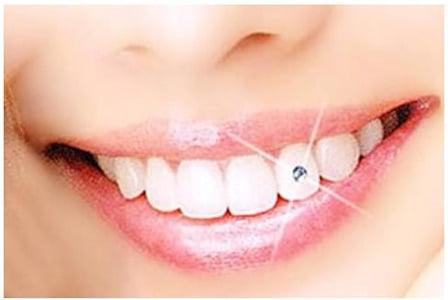 bijuterie dentara canin