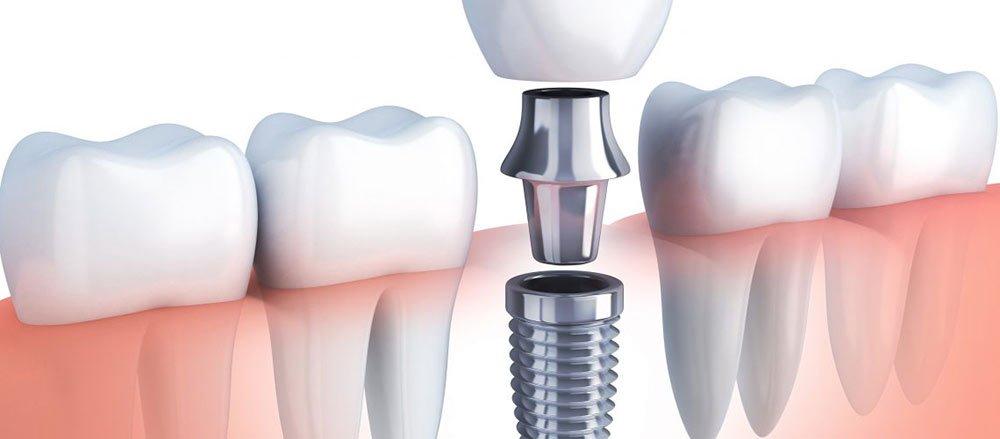 tratament cu implantul dentar